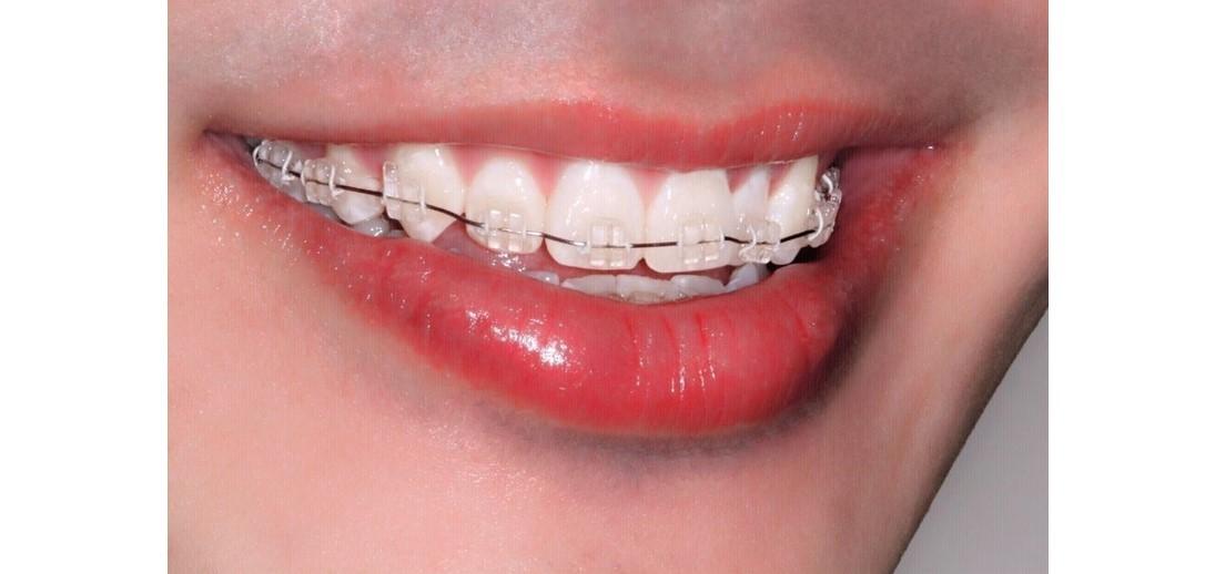 Metal Ceramic Braces Mount Elizabeth Orthodontic Clinic