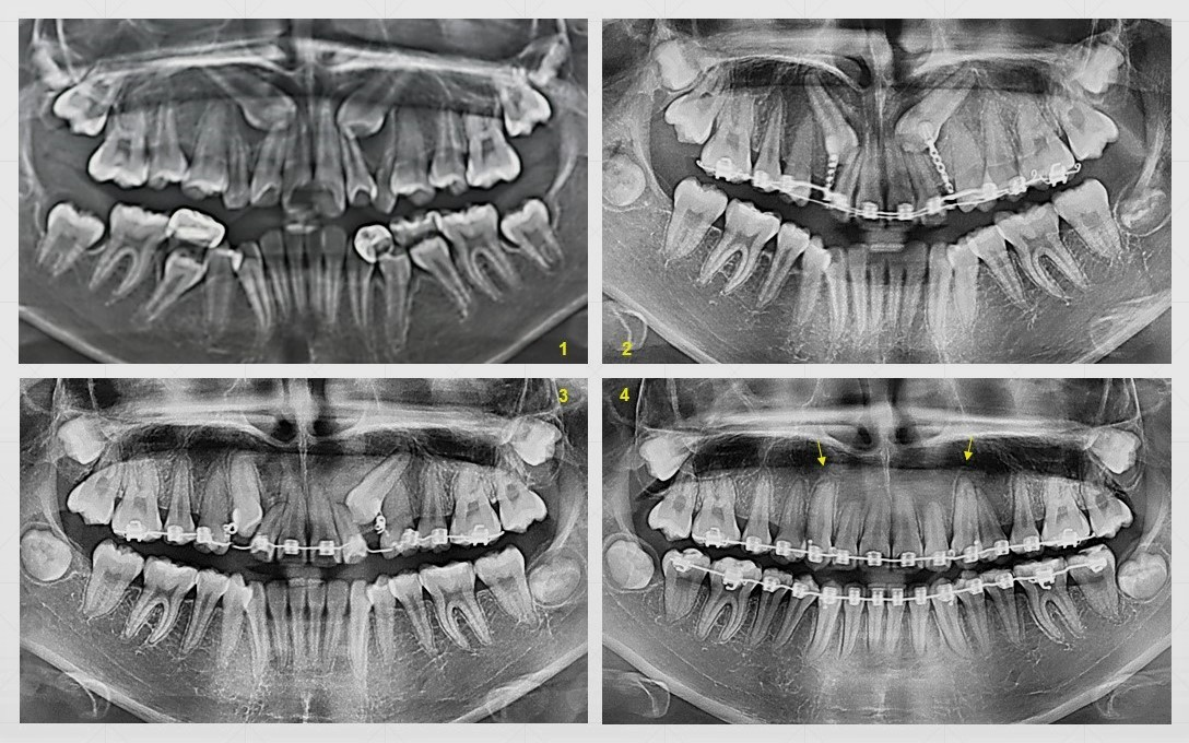 Impacted Canines.